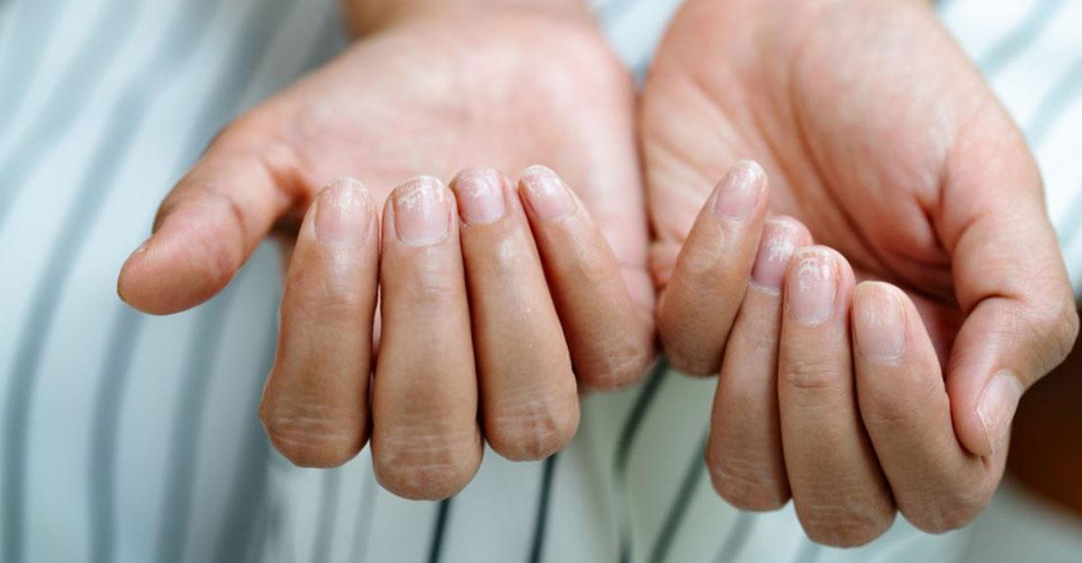 নখের যেসব সমস্যা হতে পারে করোনার লক্ষণ